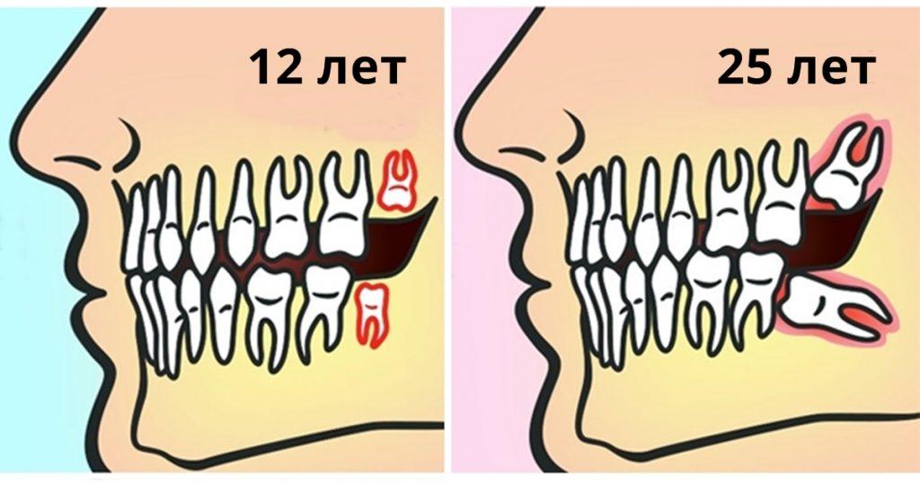 Почему зубы мудрости следует удалять до 25 лет