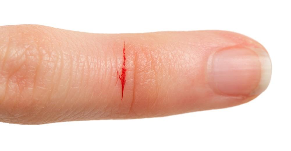 Что делает порез бумагой столь неприятным и болезненным?