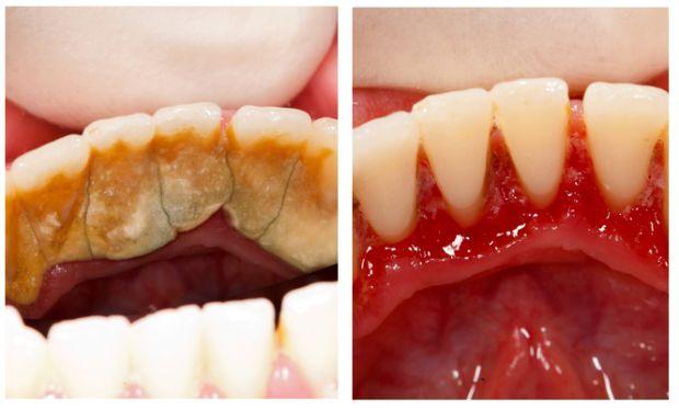 1 классный способ избавиться от зубного камня самому и дома