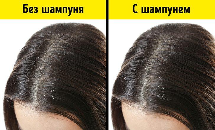 Продукты, из-за которых волосы теряют блеск и выпадают