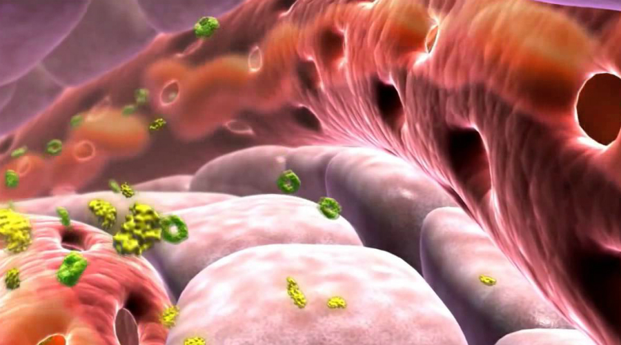 Явные признаки повышенного сахара в крови