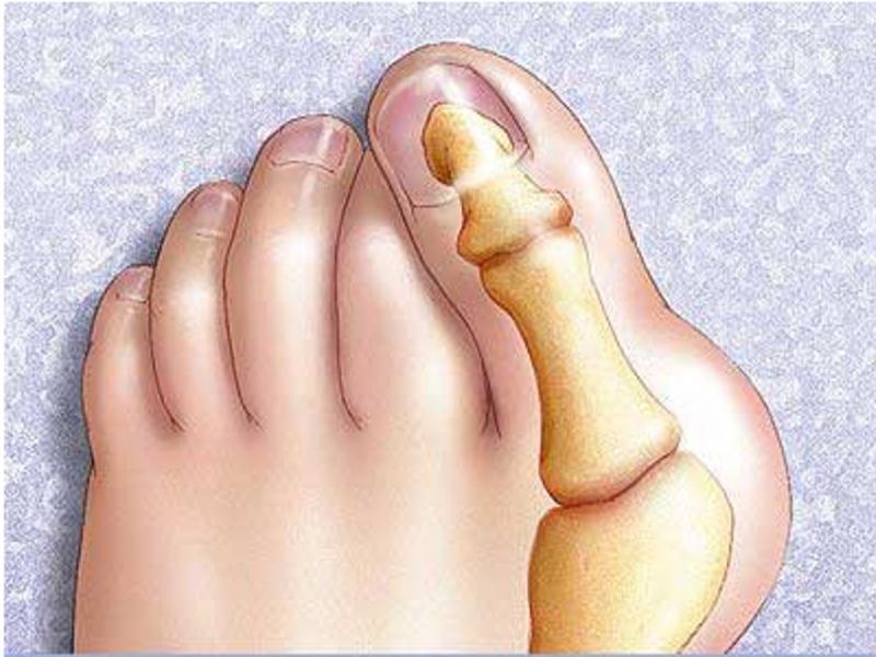 Актуальная тема  болезненная косточка большого пальца стопы Hallufix