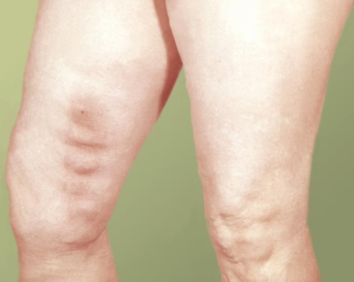 Тромбофлебит причины его возникновения способы лечения