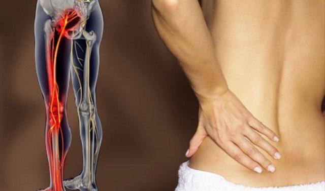 Симптомы и лечение защемления седалищного нерва