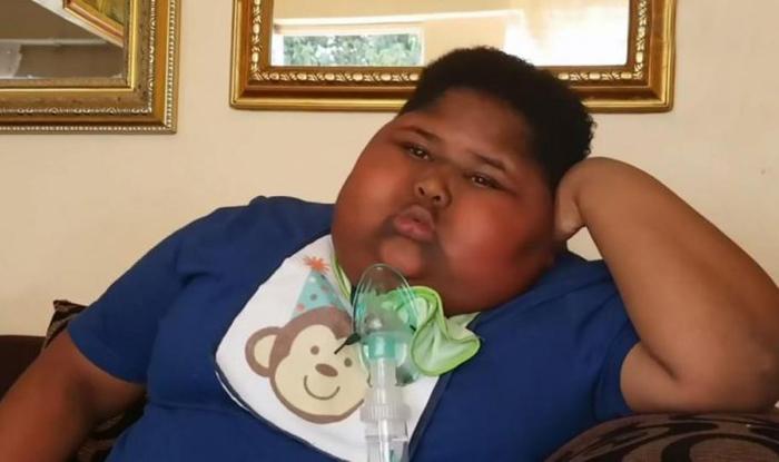 «Когда в доме нет еды, он начинает есть бумагу»: мальчик, который в 3 года весил уже 40 кг