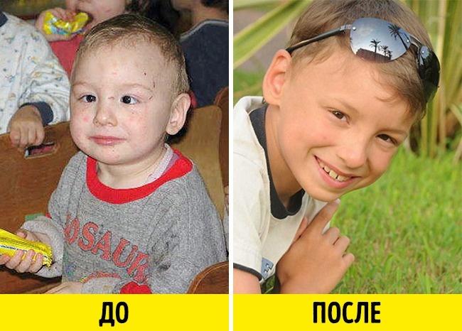 До кома в горле — 10 фото малышей до усыновления и после
