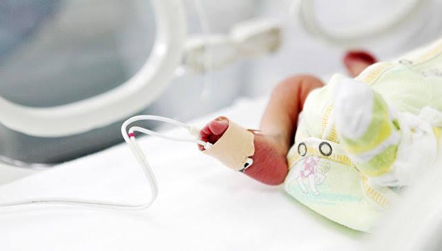 В Индии родилась девочка со второй головой в области живота