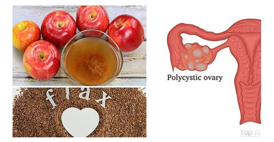 Домашние средства для контроля синдрома поликистозных яичников (СПКЯ)
