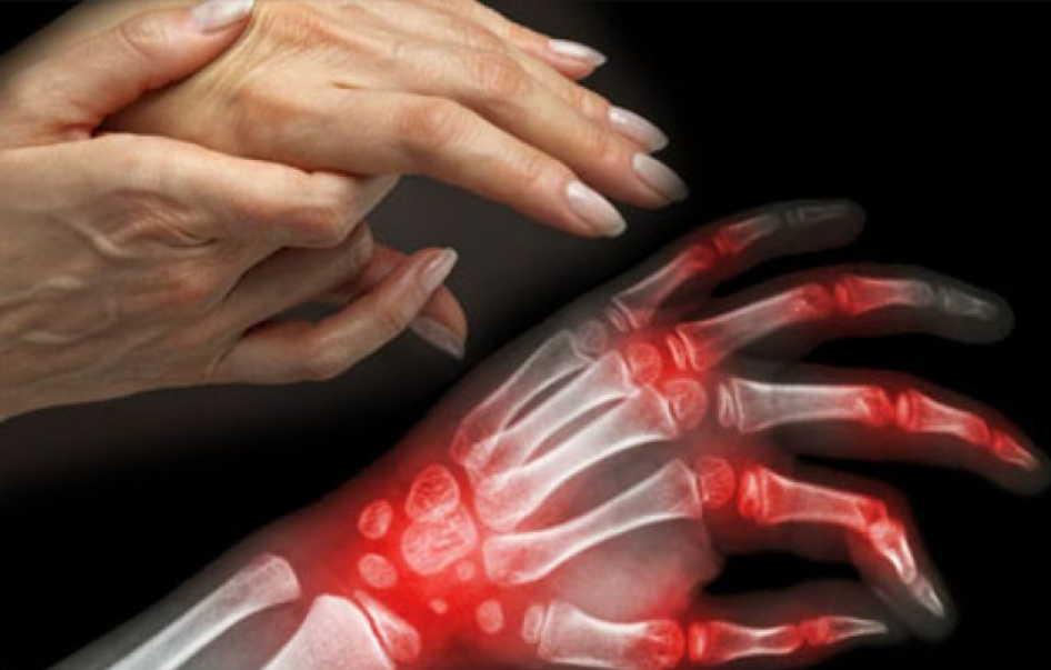 Как я вылечилась от тяжелого артрита - теперь живу без страданий и болей. Суставы больше не болят!
