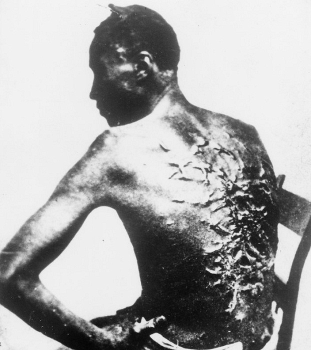Питер, раб из Батон-Ружа, штат Луизиана, около 1863 года.
