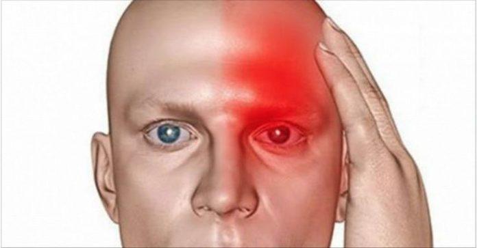 8 ранних симптомов, указывающих на то, что у вас начинается инсульт, и что еще один скоро последует