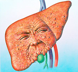 Что такое жировой гепатоз?
