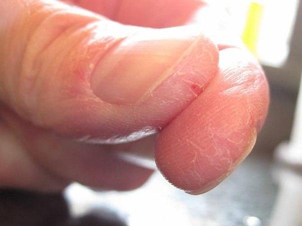 Как убрать трещины и шероховатость на руках