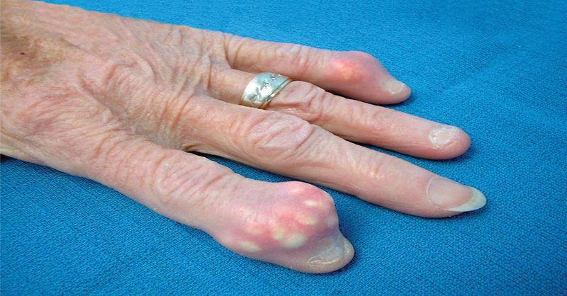 Как устранить кристаллизацию мочевой кислоты в организме и излечить боль в суставах при подагре
