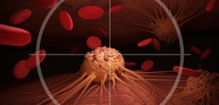 Испанские учёные открыли эффективный метод лечения рака лёгких