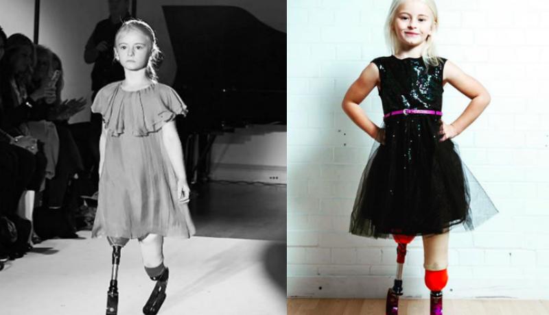Семилетняя девочка с ампутированными ногами строит карьеру в модельном бизнесе