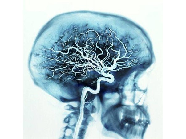 Несколько рецептов народной медицины для сосудов головного мозга