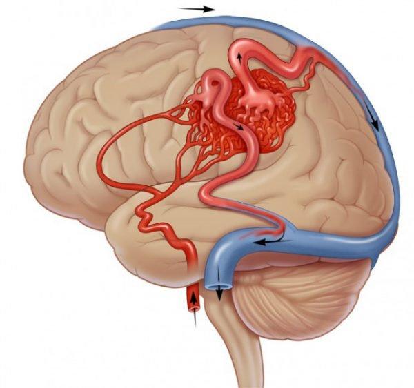 Как улучшить кровообращение мозга? 5 полезных советов