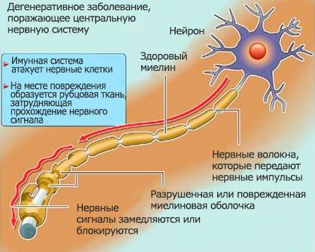Давление рассеянный склероз