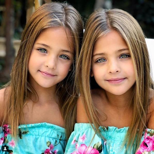 """""""Красота и популярность"""": названы самые красивые близняшки в мире"""