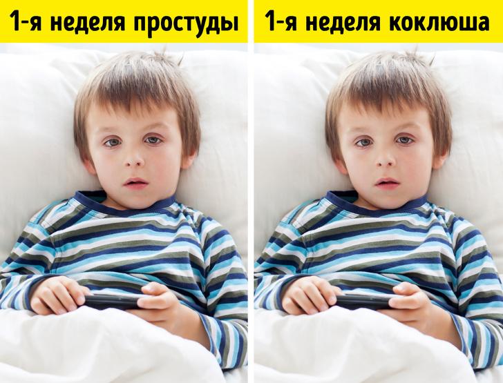 6 похожих на простуду детских болезней, которые опасно пускать на самотек