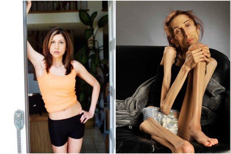 Как довести тело до анорексии