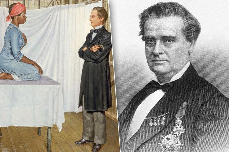 Гений или мясник: кровавые эксперименты «отца современной гинекологии»