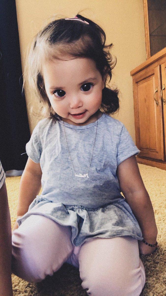 У этой девочки огромные красивые глаза - из-за редкого генетического состояния