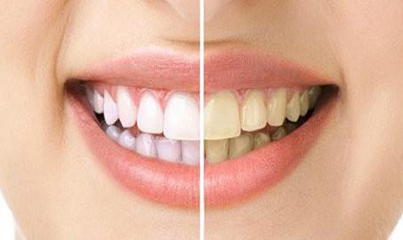 Уход за зубами: 10 простых с…