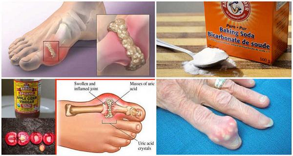 Как эффективно предотвратить подагру и боль в суставах путем удаления мочевой кислоты из организма