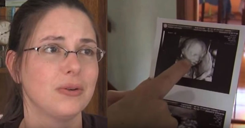 У них уже было 4 сыновей, и они очень хотели дочку. На плановом УЗИ врач замолчал, глядя на изображение!