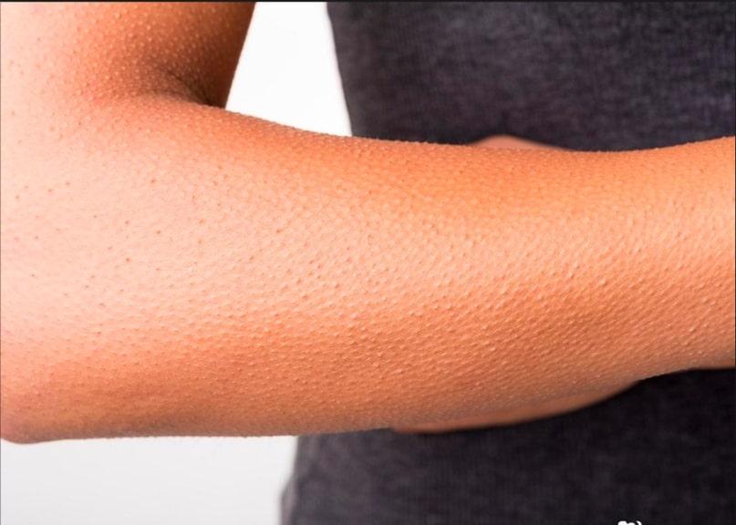 10 главных признаков, что у человека авитаминоз