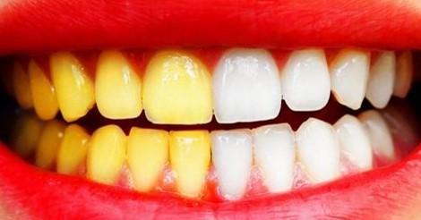 9 трюков, чтобы отбелить зубы не выходя из дома