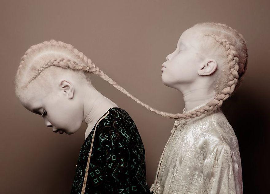 Близнецы-альбиносы из Бразилии покоряют мир моды своей невероятной внешностью