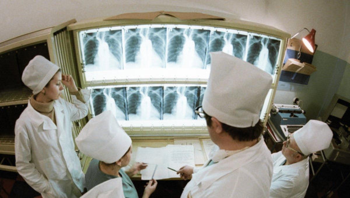 В России придумали, как лечить рак легких без удаления органа