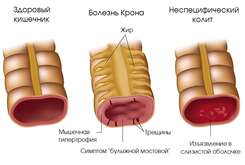 Картинки по запроÑу 5 ранних Ñимптомов болезни Крона