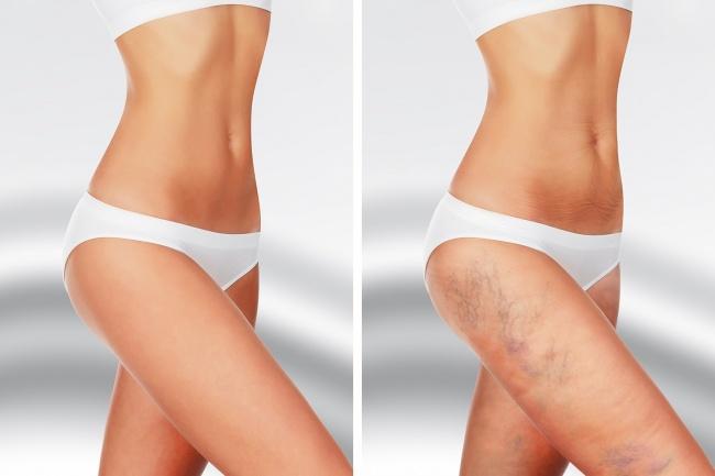 7 проблем с организмом, о которых могут сообщать беспричинные синяки на теле
