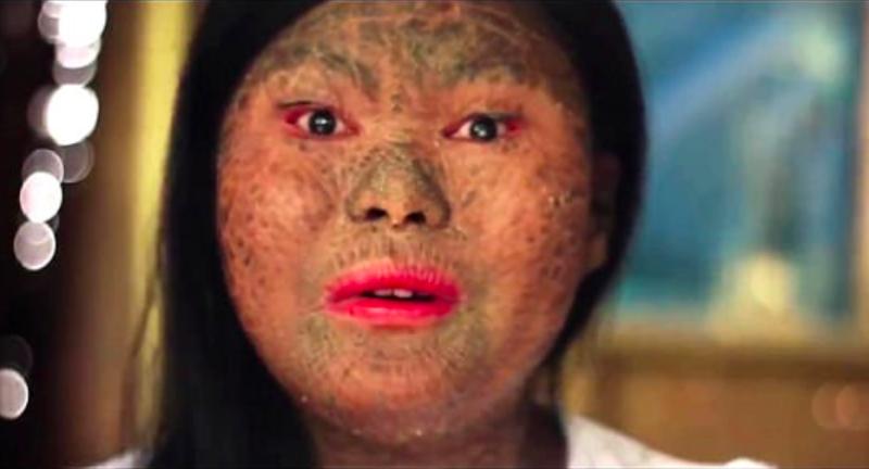 Девушка-змея: из-за редкого заболевания кожа филиппинки похожа на чешую