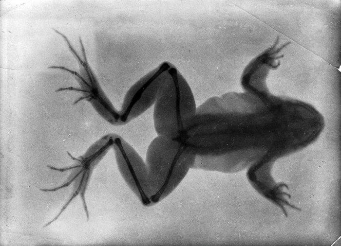 «Я видела свою смерть!»: Таинственные лучи профессора Рентгена