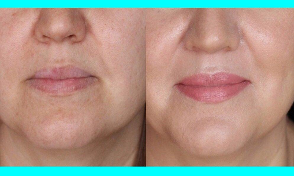 Получается эффект свежей отдохнувшей кожи