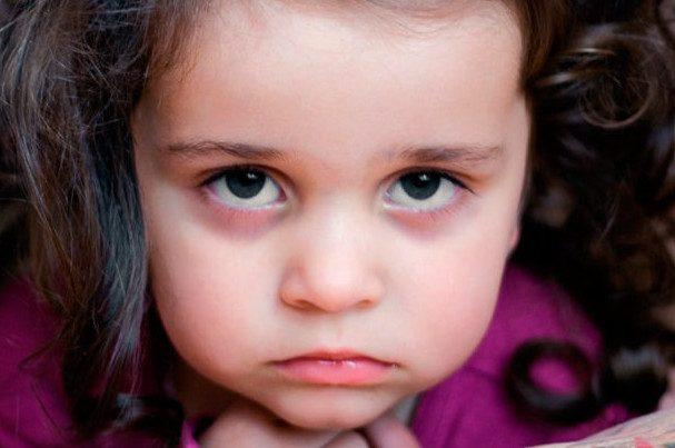 6 причин появления у ребенка кругов под глазами