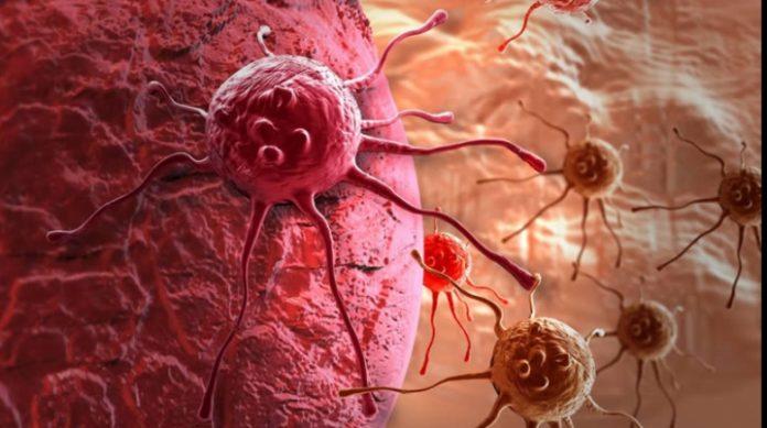 5 проверенных  привычек, которые помогают предотвратить рак