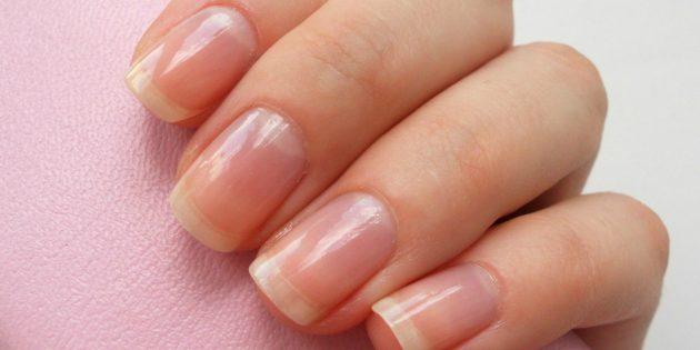 Как определить состояние здоровья по ногтям (11 признаков)