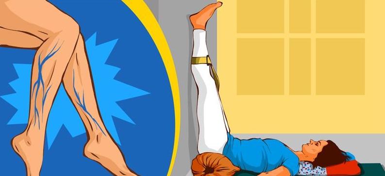 5 асан йоги, которые помогут избавиться от варикозного расширения вен