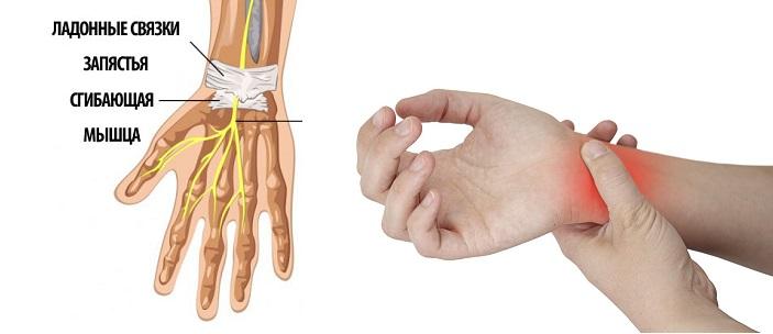 Почему болит лучезапястный сустав?