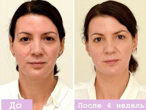 Омолодить лицо в 30 лет в домашних условиях