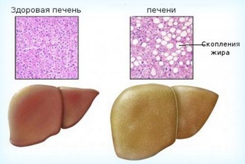 Стеатоз печени — причины и лечение