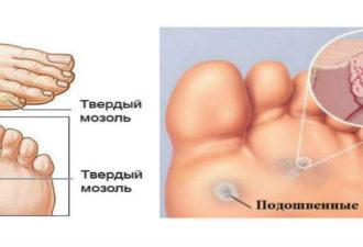 Мозоли и бородавки на ногах: как от них избавиться?