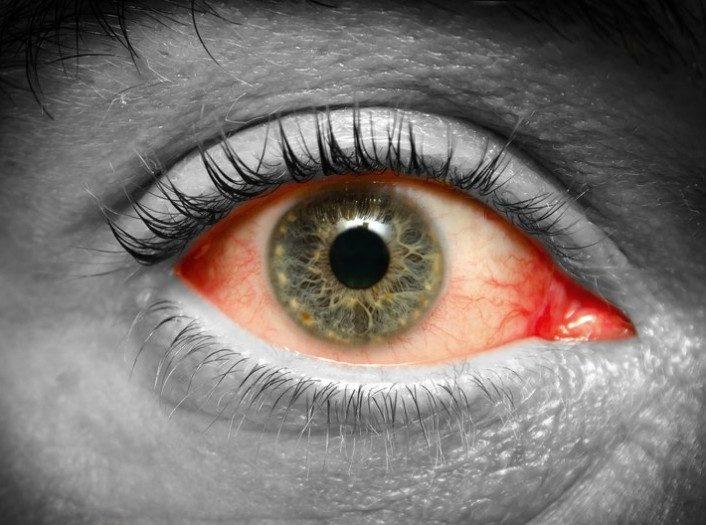3 простых упражнения дня снятия усталости глаз