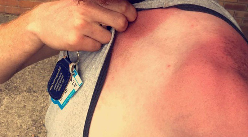 что делать при солнечном ожоге в домашних условиях